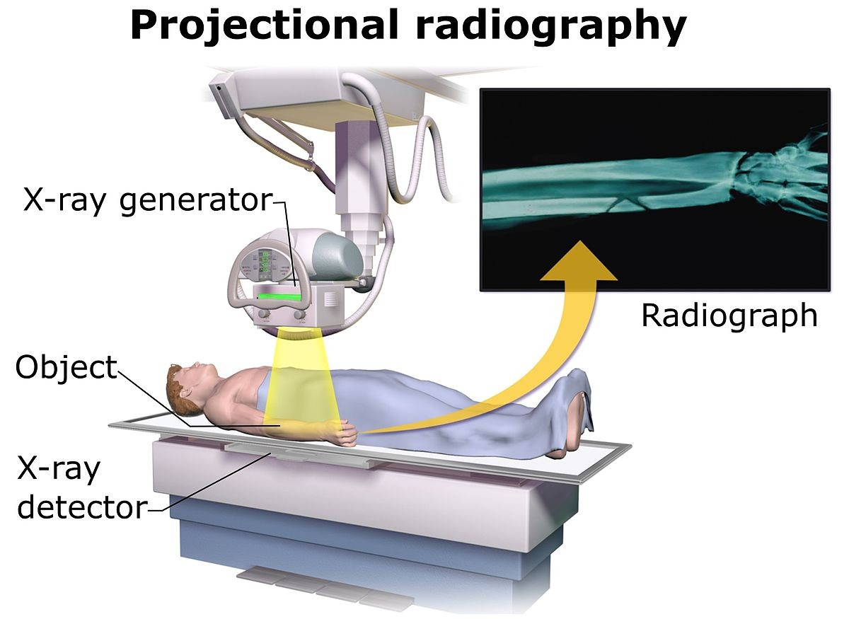1200px Projectional radiography ponents