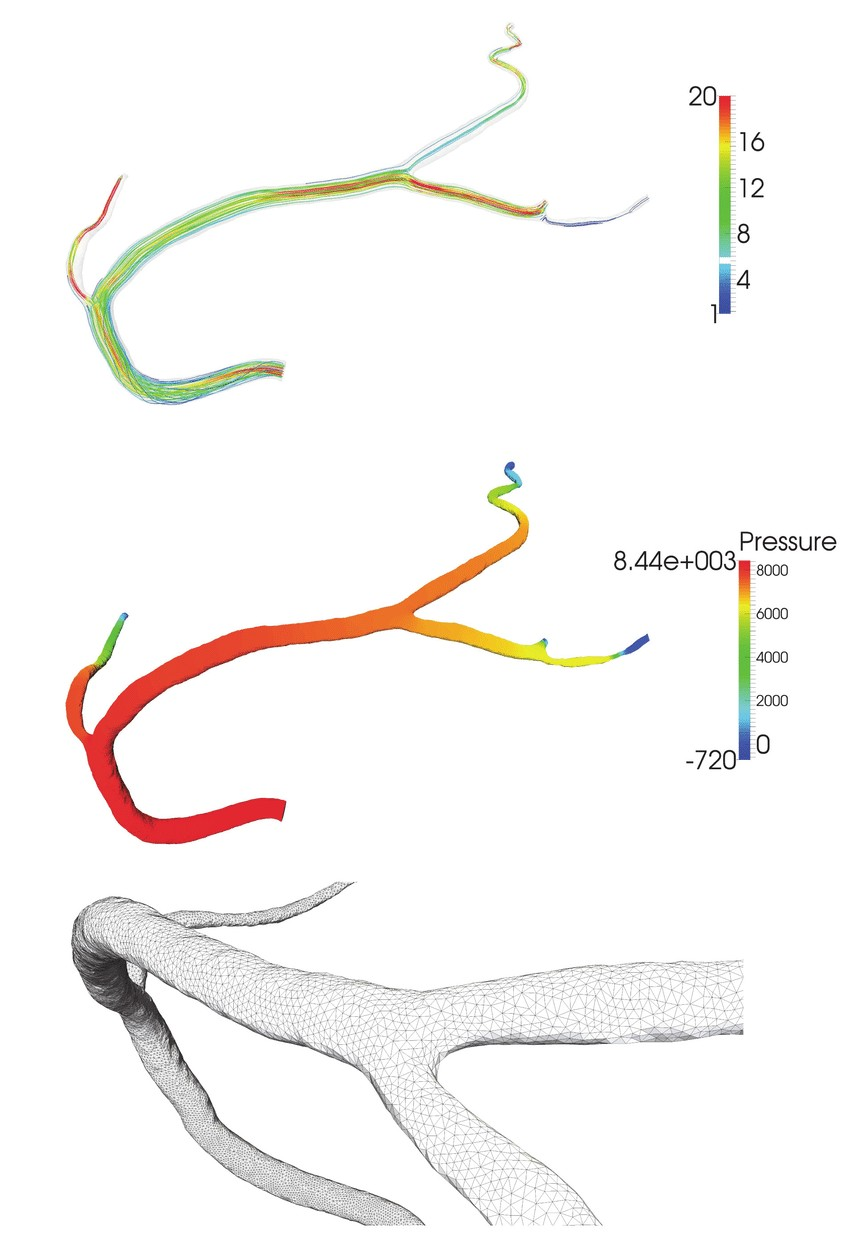 Right coronary artery Top picture shows selected steamlines colored by the velocity absolute value at