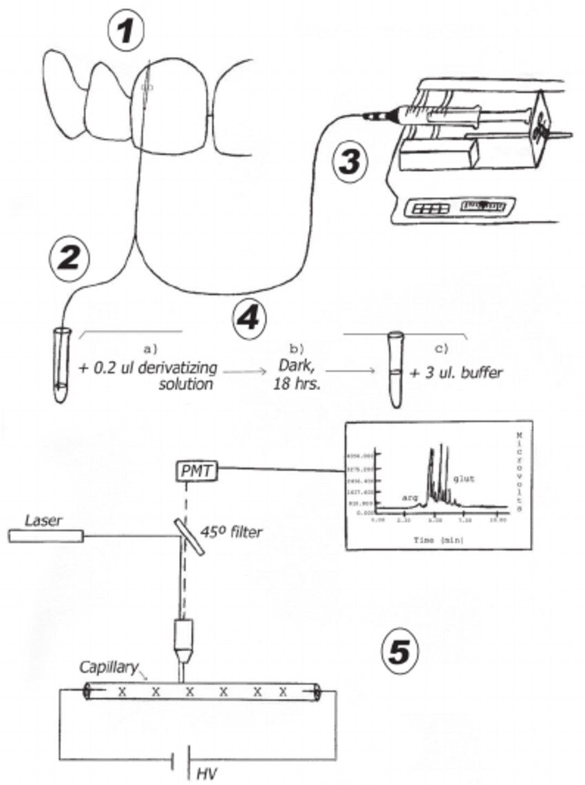 Schematic presentation of GCF sample collection and analysis 1= Straight probe introduced in the